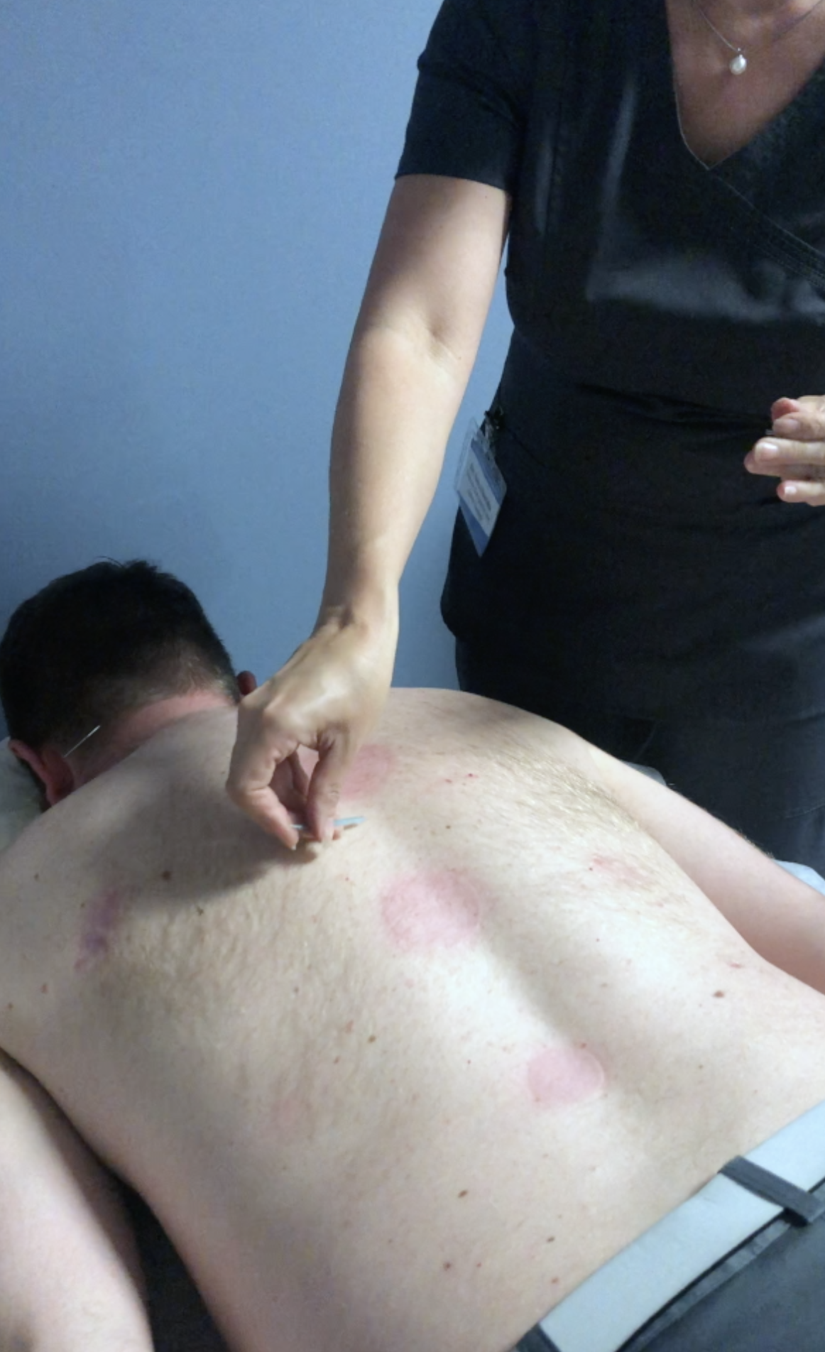 Balance the body's natural system with Acupuncture!