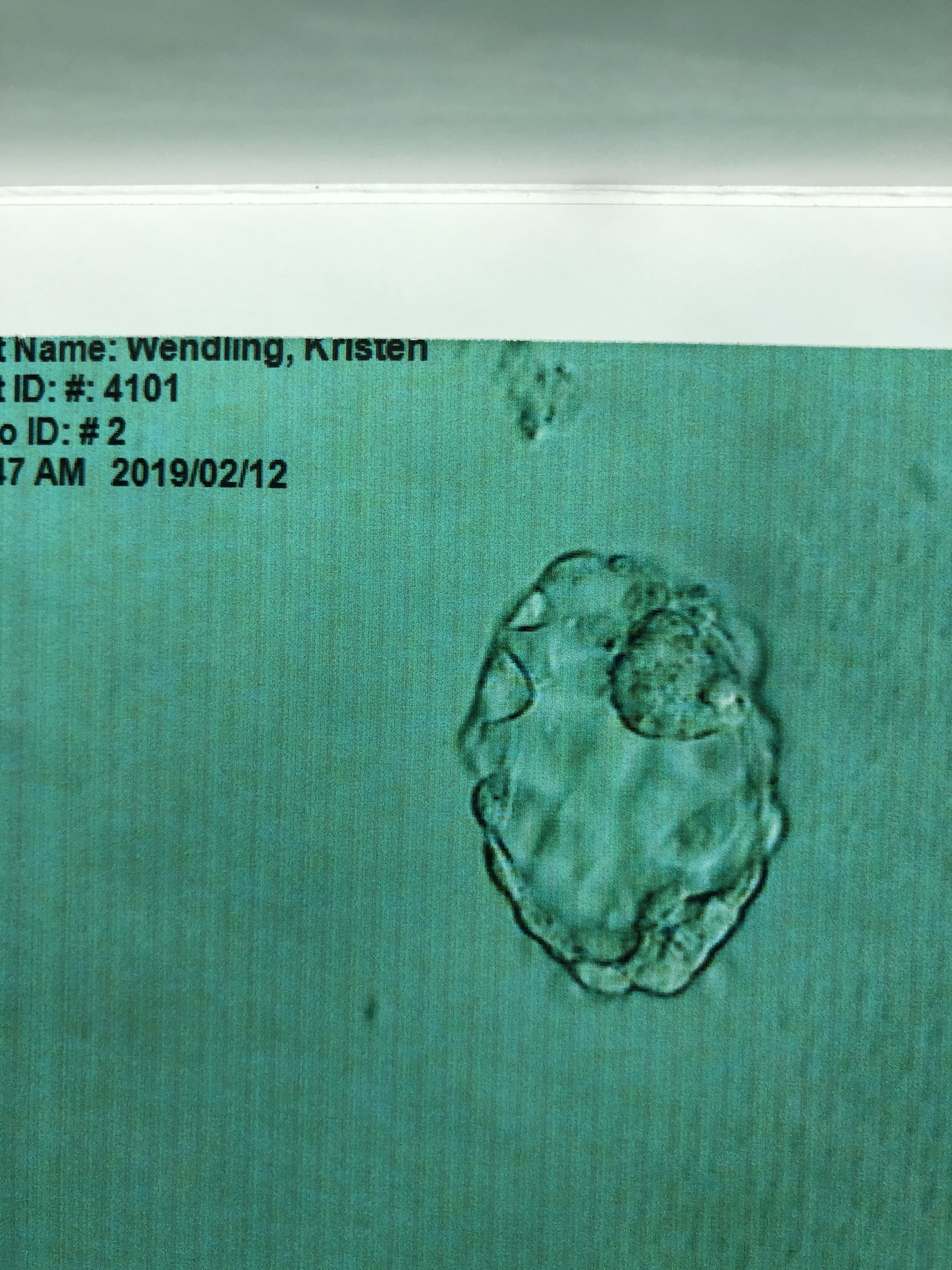 Frozen Embryo Transfer: the procedure and the two-week-wait