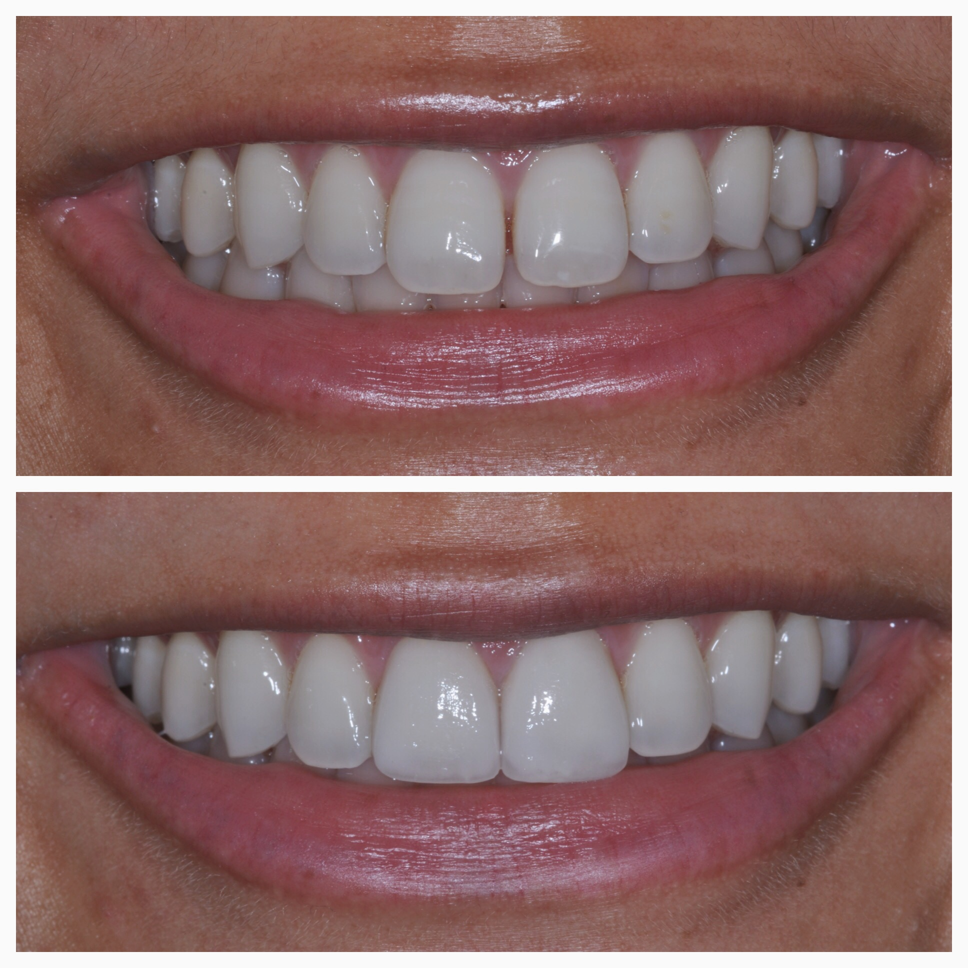 Before and after 2 porcelain veneers