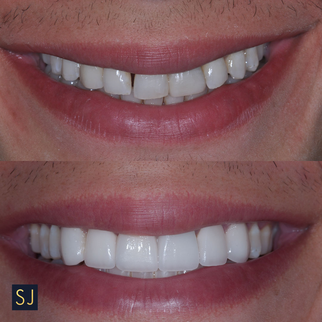 before after smile.jpg