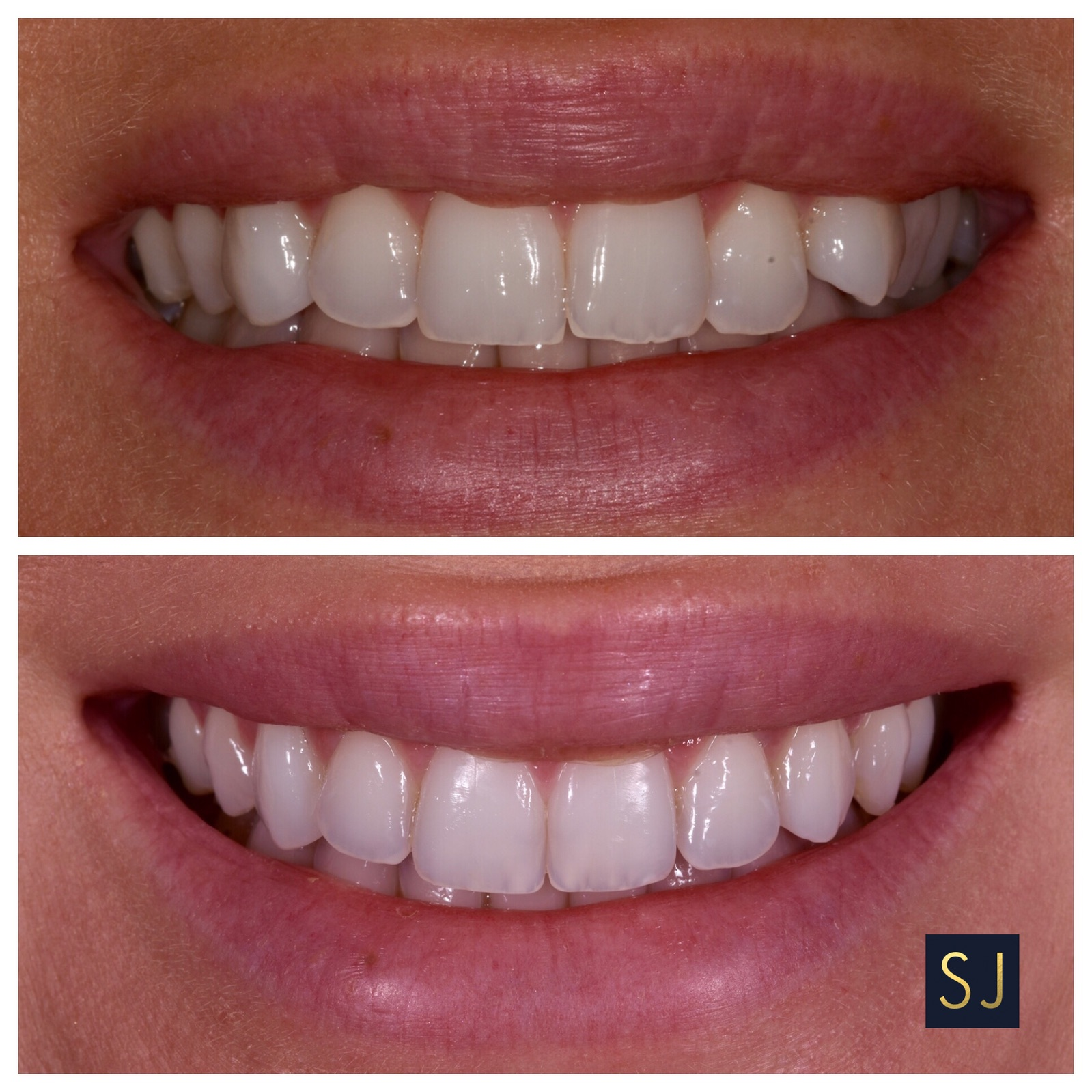 - Here this patient did not like how her smile was jagged and her side teeth were really tucked in. in a matter of 6 months we were able to straighten out her teeth and broaden her smile so she was able to go away to college confident in her image and ready to smile.