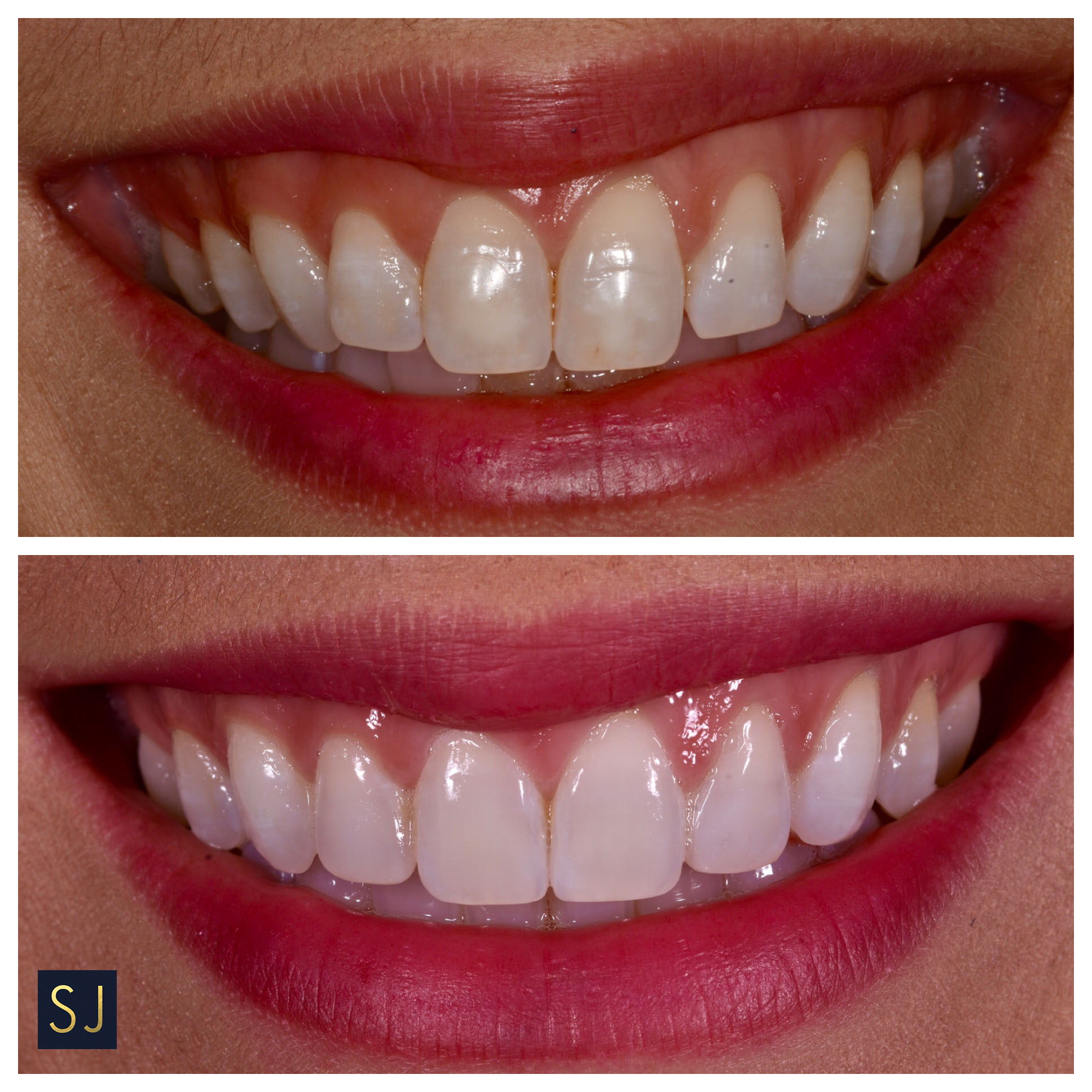 - This is another case where the patient was really unhappy with the spacing and canting of her smile. In a matter of 4 months we were able to align the teeth and whiten the teeth and enhance them with a little bit of bonding to give that overall 'wow' factor. Needless to say the patient is ecstatic with her image and her confidence has obviously increased tremendously.