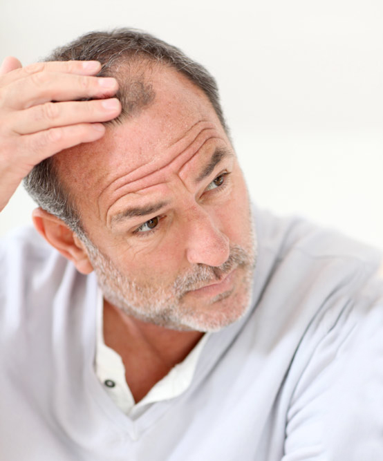 non-surgical-hairloss-treatment-options-1.jpg
