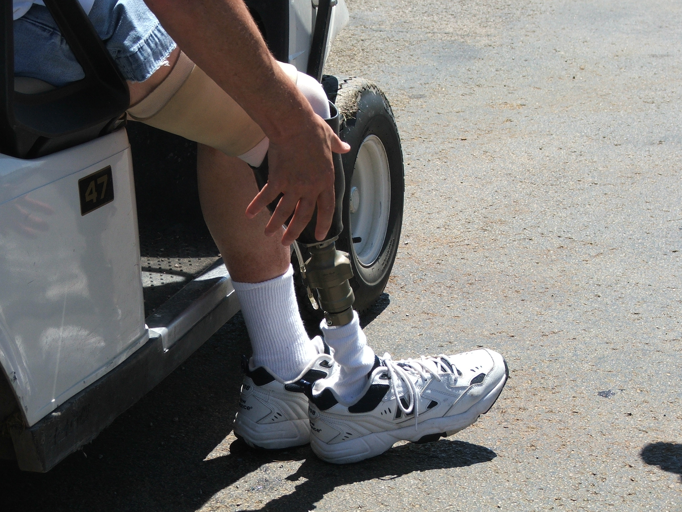 restoreprosthetics.jpg