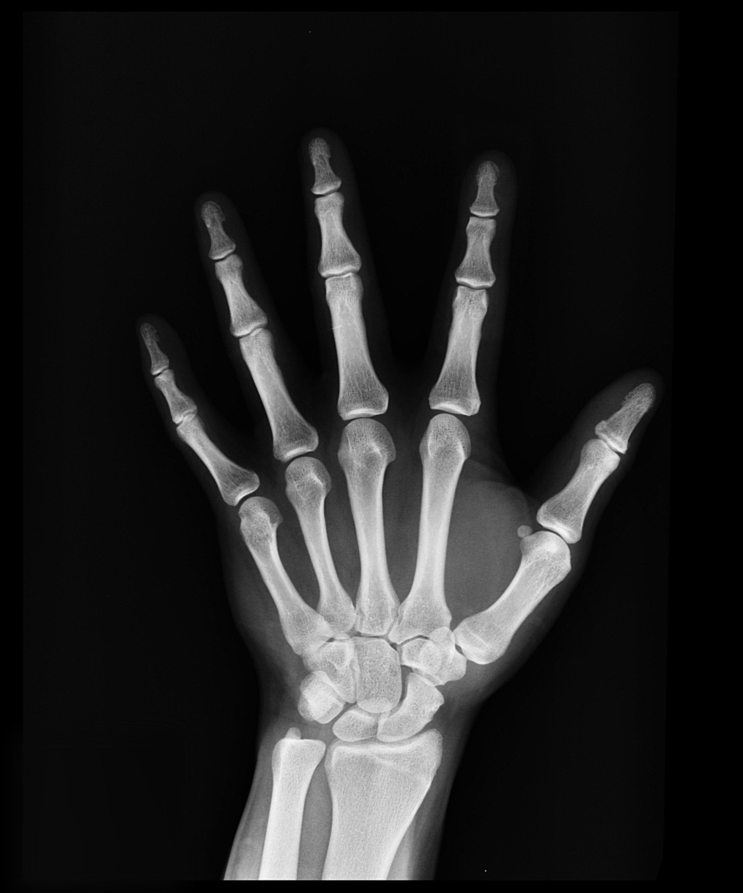 Watch Bone Basics - Credit: Sportology