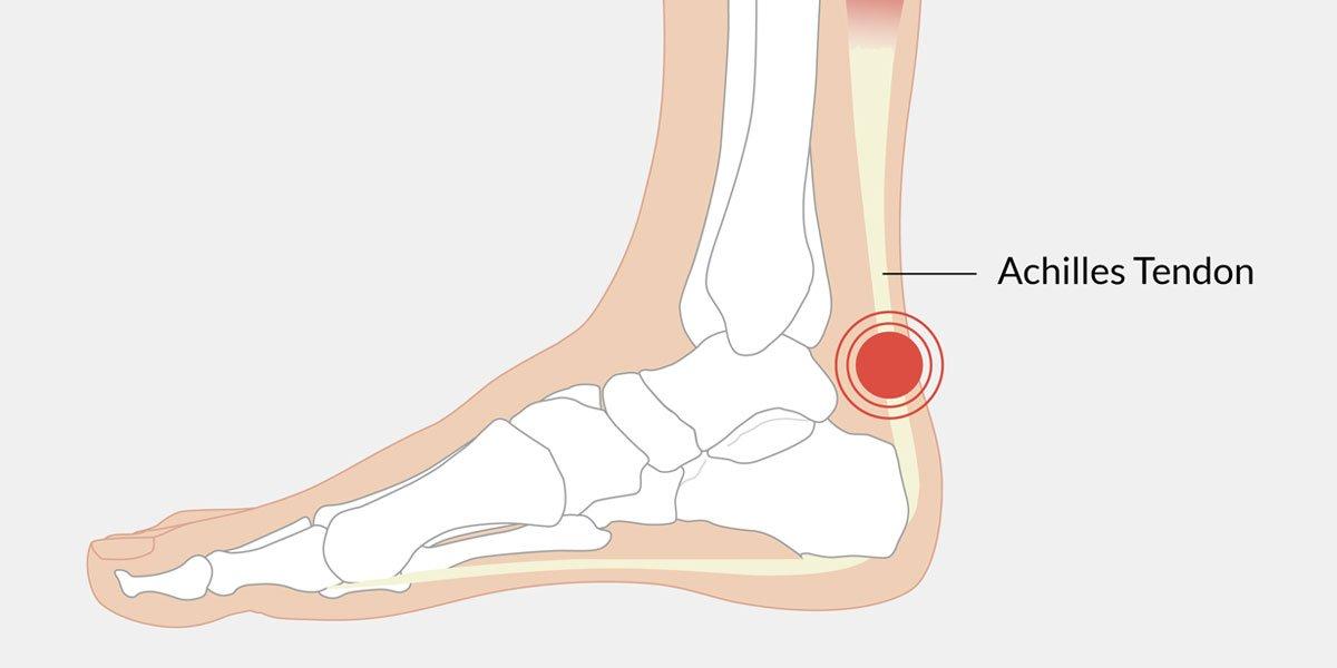 Achilles-Tendonitis-Illustration.jpg