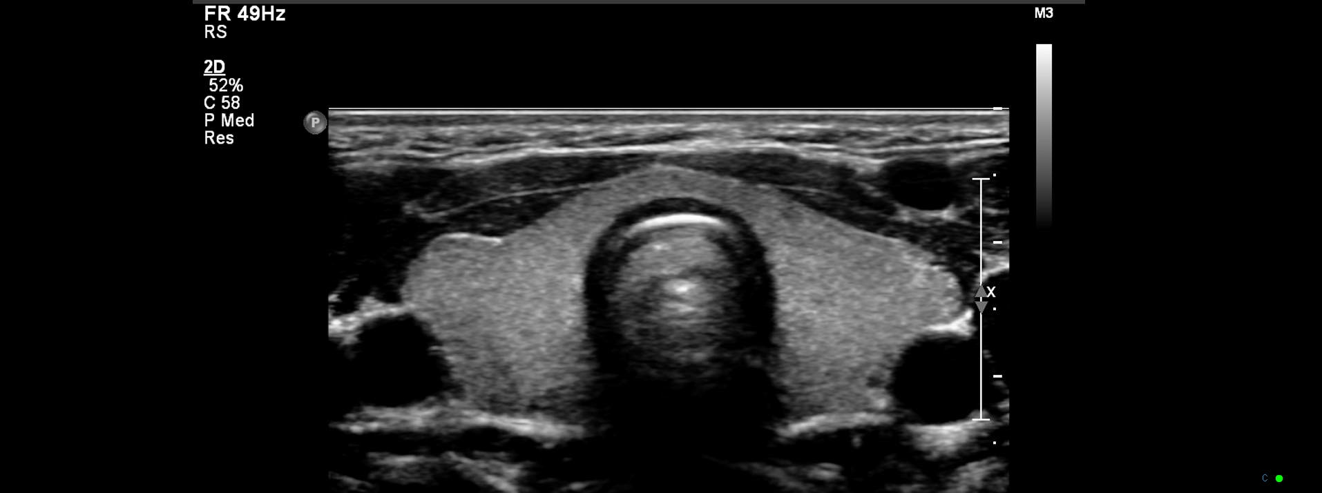 Thyroid sonography image