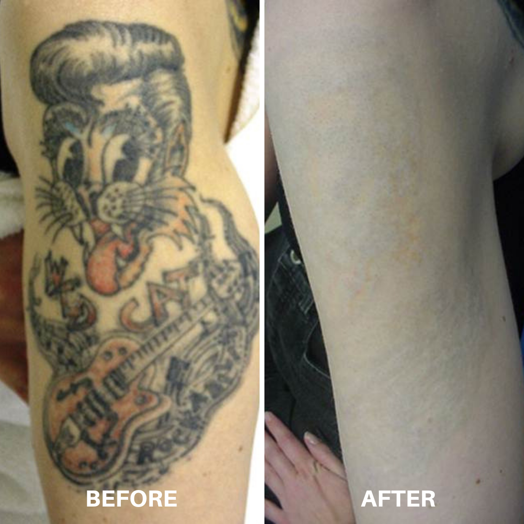 TattooRemoval1.png