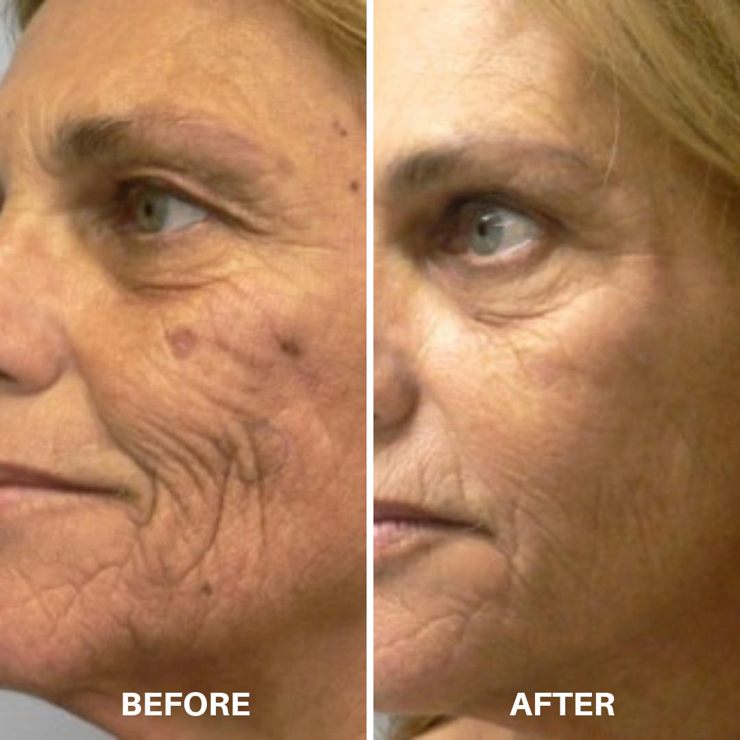 ClearLift Before & After2.png