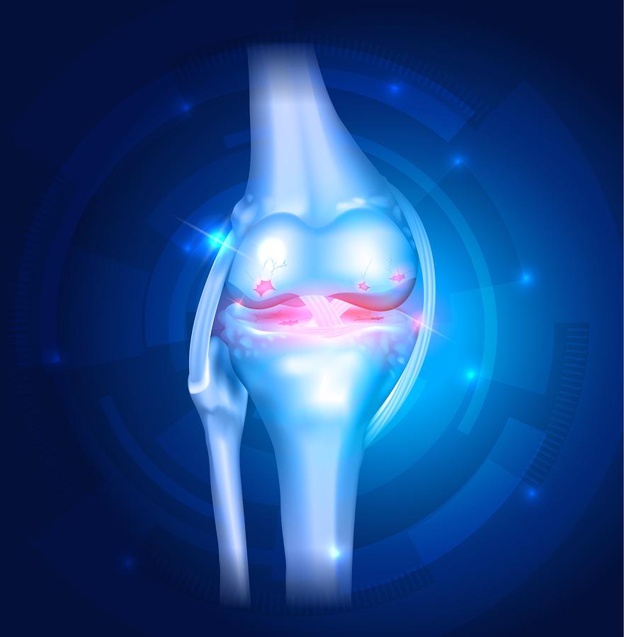 Knee-Osteoarthritis.jpg