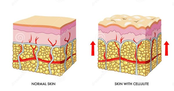 skin-with-without-cellulite.jpg