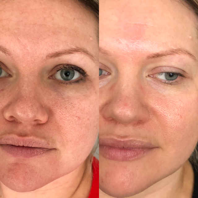 Glycolic 40% - One of the most popular non-invasive treatments available. Intense yet a gentle, superficial peel (focusing on the epidermis). For best results a course of 6 treatments are recommended.Ideal for : Anti-ageing, Acne Prone Skin, superficial pigmentation, Photodamage, Uneven skin tone and texture, powerful anti-microbial (kills bacteria).Contains: Glycolic acid (from sugar cane), Willowherb (anti- inflammatory) and Vitamin C a topical antioxidant.What can you expect:Skin will feel clean, soft and revitalised. The treatment exfoliates and removes abnormal cells, brightening the skin creating a visibly improved texture. Duration begins at 2 minutes building up to 5 minutes maximum. Peels will be scheduled according to skin requirements.Downtime: NonePrice: 1 treatment £50Course: 6 treatments £240 (saving £60)