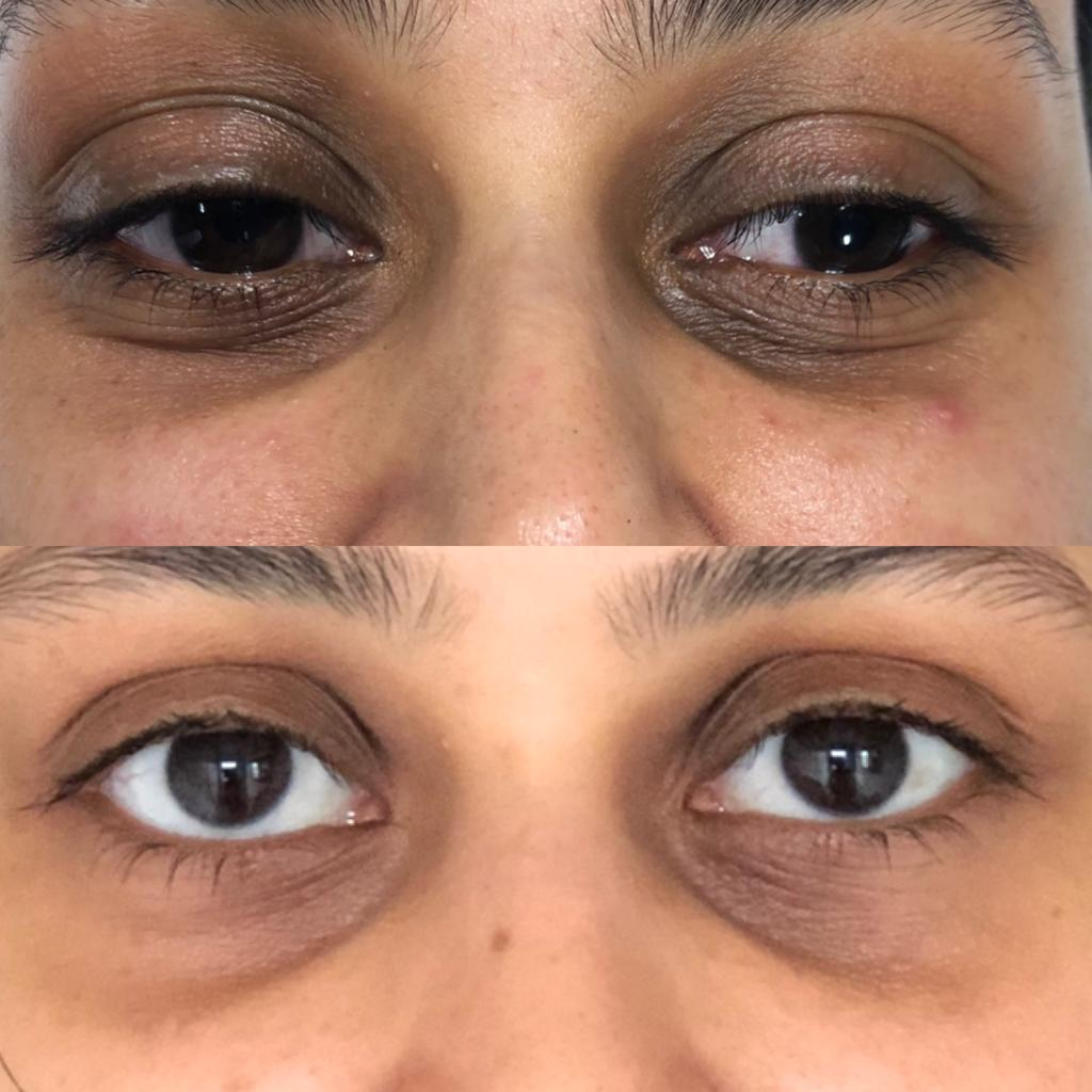 Eye Corrector - The eye corrector treatment reduces dark circles, repairs the eye contour, tightening the upper eyelid and produces an eye lifted affect reducing lines and wrinkles. It can be used in addition to other treatments. For best results during the first year it is recommended to have 2 courses (at 6 monthly intervals). Followed by maintenance treatments once or twice a year, as and when required.Ideal for: Anti-ageing, De-pigmentating (dark circles), Firming (crows feet - lifting effect), Re-structuring.Contains:Step 1: Vitamin A, Lactobionic Acid, Salicylic Acid, Mandelic Acid .Step 2: Tocopherol Acetate, Arnica Extract, Cupressus Sempervirens Ext, Extract Rucus Aeculeatus, Glycyrrhetinic Acid, Extract Morus alba, Phytic acid.What to expect: This requires a total course of 5 treatments weekly. The treatments start at 2 minutes to a maximum of 6 minutes. The length of time is dependant on your skin type.Price:Full Course £125 only when booked with another Facial CourseFull Course £175