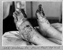 Trench Foot - Non Freezing Cold Injury (NFCI) also known as Immersion Foot.