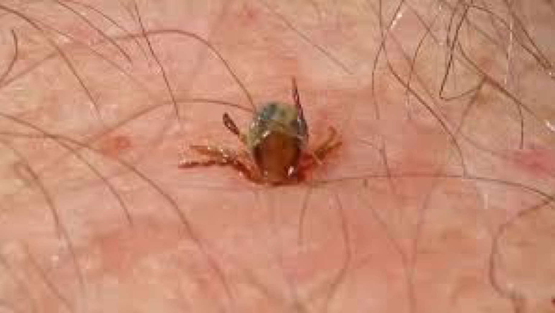 Embedded tick in human skin. Mouth parts beneath the surface.