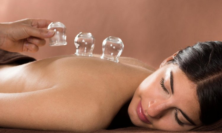 Cupping-Spa.jpg