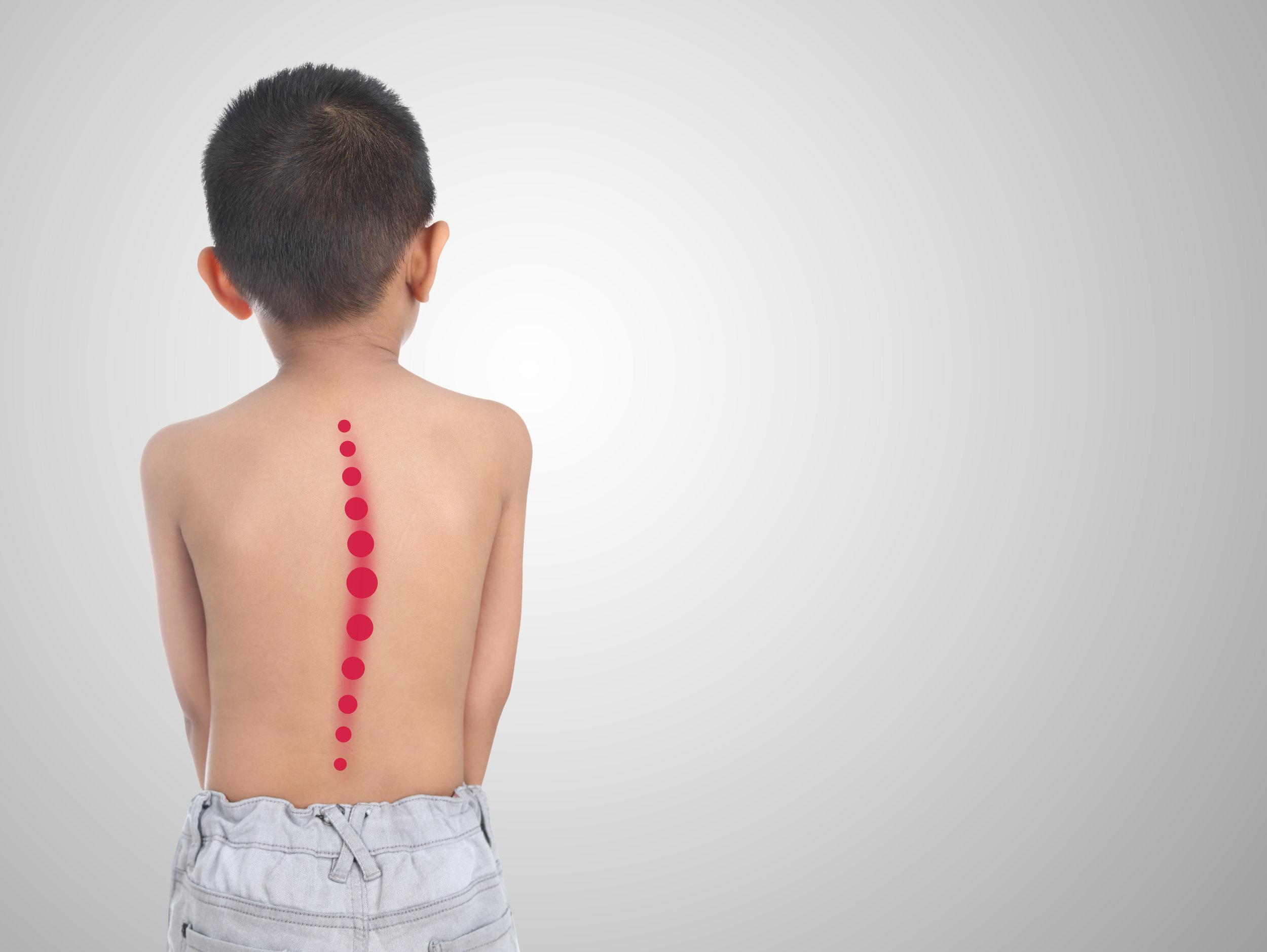 child scoliosis