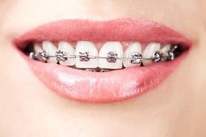 Woman-with-Braces-Cobbe-Dental-2.jpg