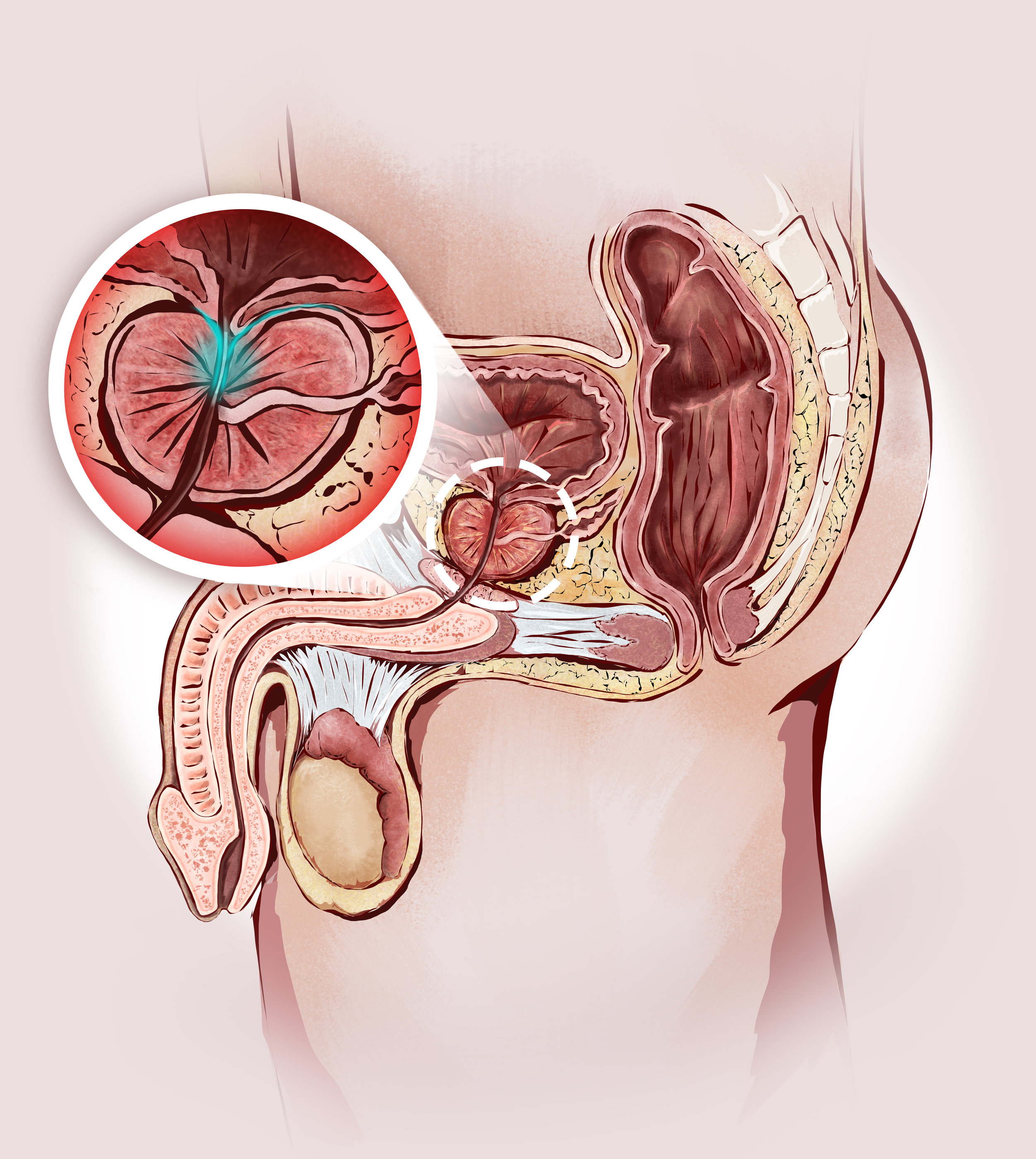 Anatómia prosztatitis)