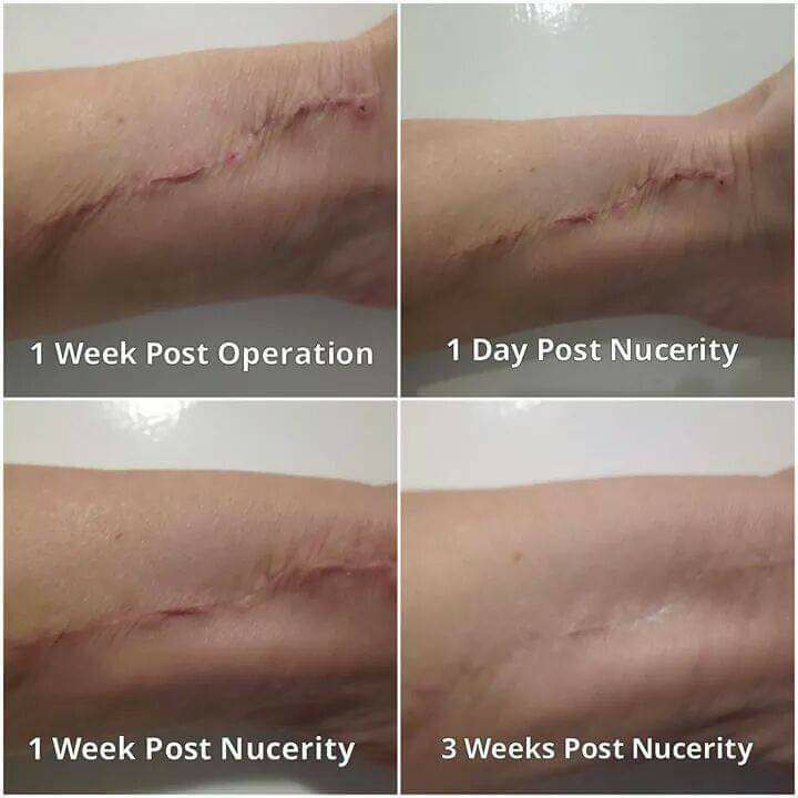 scarring old and new scarring we can help.jpg