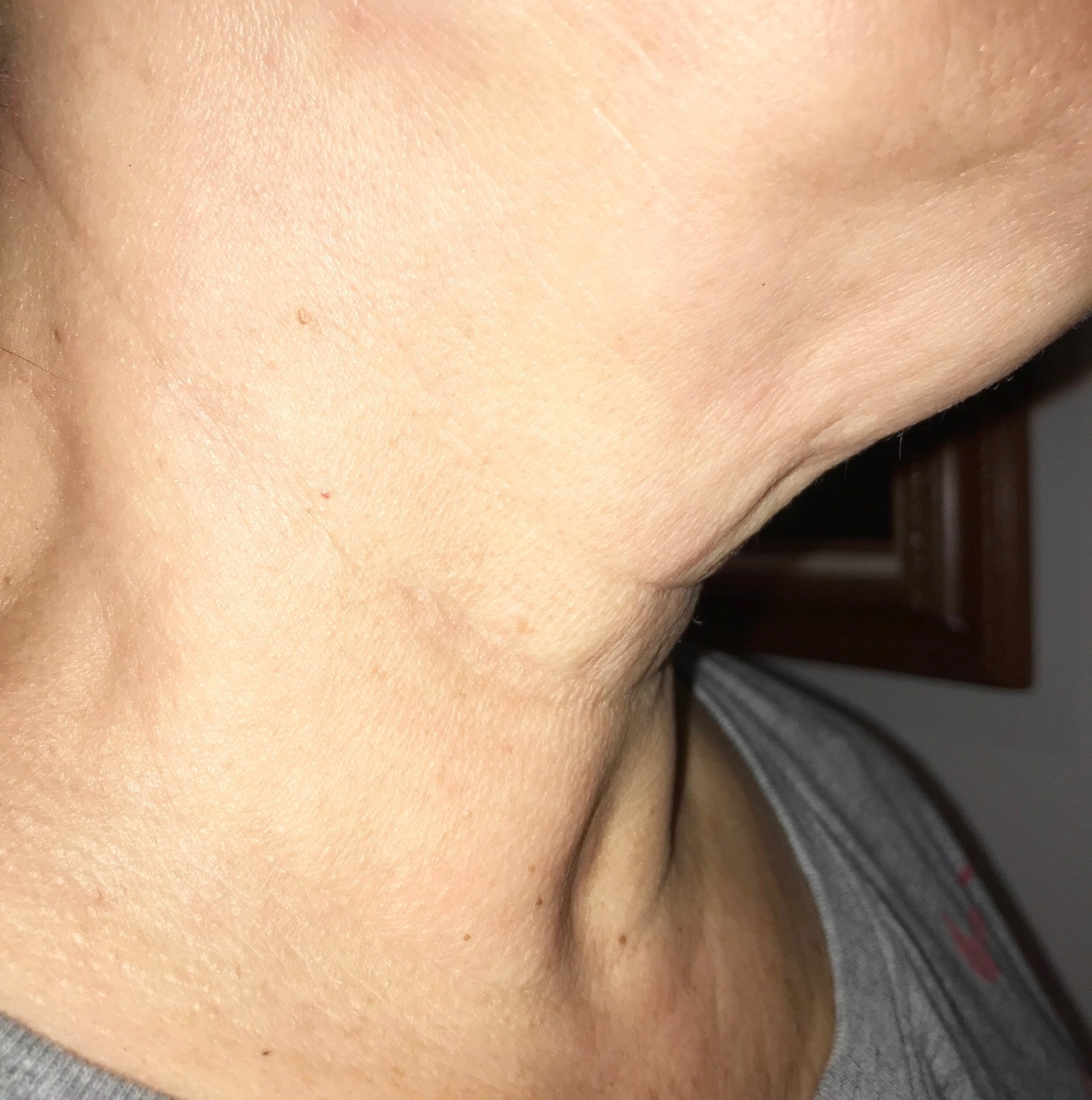 """Judy B: Week 4 - """" I have to say, It has been a wonderful experience using the neck mask and serum to condition and care for that part, otherwise I don't know what I would do to keep the lines at bay and look younger with a tighter, brighter neck- it is the first thing I pamper myself with after flights!"""""""