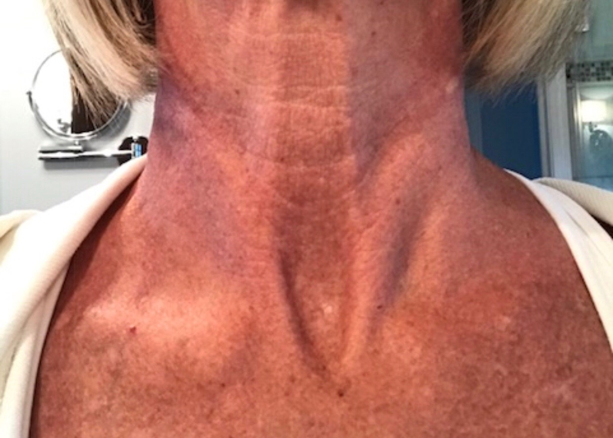 """Vera G: Week 1 - """" I was nervous to put anything like this one my neck, as it really doesn't get a lot of attention besides moisturizer spill over etc. But what shocked me was how amazing it felt when you applied it. It felt like after sun lotion, cool and soft. I was not aggravated by it at all, during any of my uses!"""""""