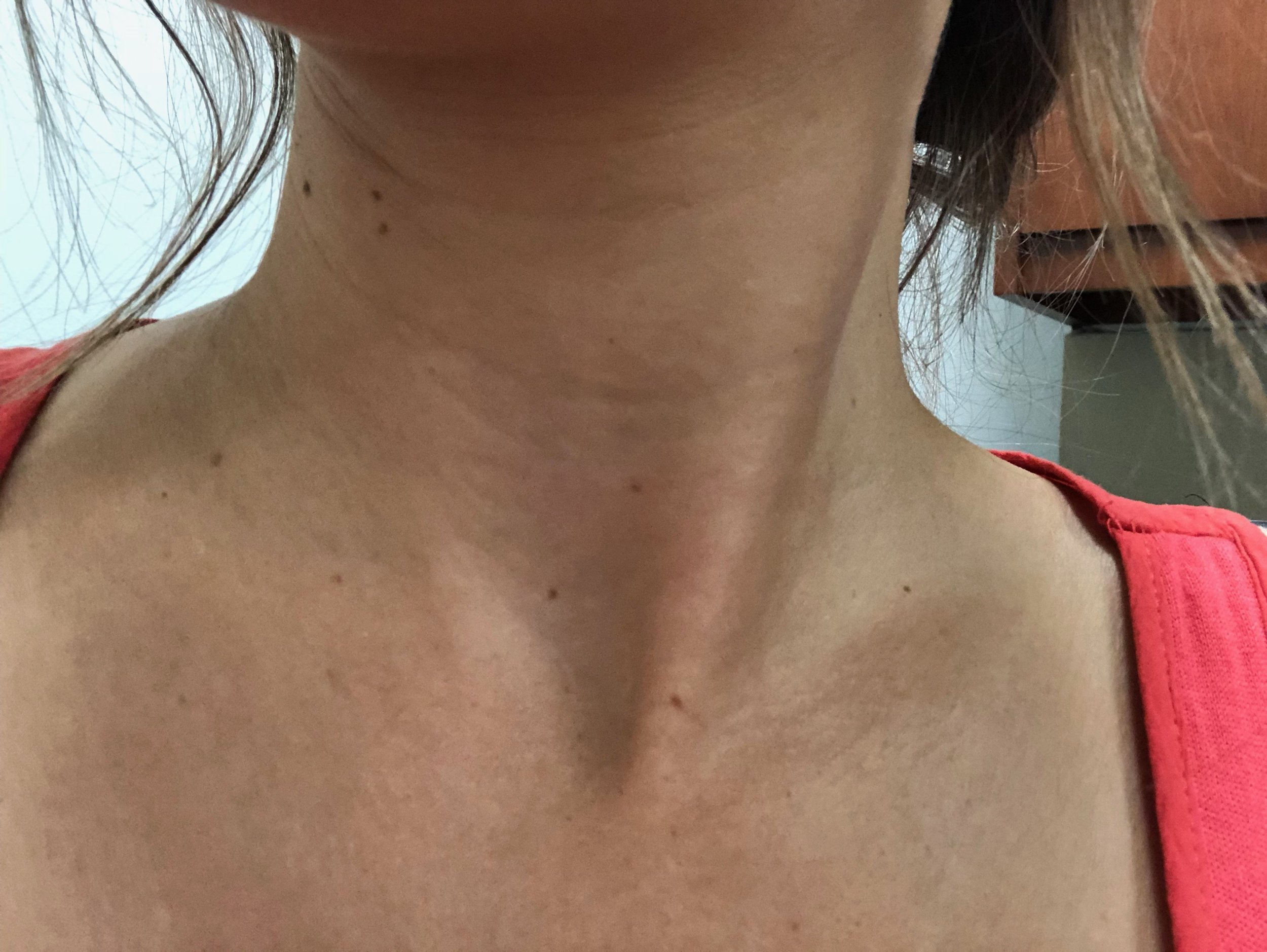 Katherine K: Week 1 - Week 1 was interesting, the mask is pretty cool. I LOVE that is is clear, so I don't look weird when going around with it on! It did take at least 30-35 min to dry. But when it did- it came off in one piece! I feel like my neck is softer already so we will see what happens.