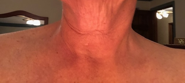Sandra W: Before - I tend to have a really great looking neck except for the big line that runs through! This is before I did the mask and serum.
