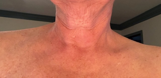 Sandra W: After Use - Okay, so this is just after ONE use!! My neck is lighter, brighter and the wrinkles look way better than in the first picture. I had some trouble peeling it off, definitely takes 30 min but it was WORTH IT!