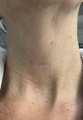 Samantha K: Week 4 - I would say the biggest thing I noticed was my neck was incredibly soft and looks brighter after every use, the one line I have seemed to be reduced so I would invest in this product for sure!