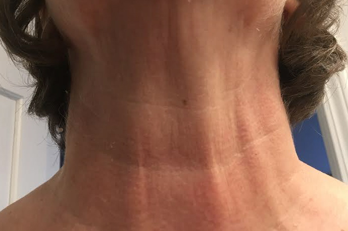 Deborah L: Week 1 - I deal with a lot of lines that aren't from age etc. I just have them and I hate them. I wanted a product that was over the counter, I can use as will and works. After the first use my neck felt tighter ALL day. It was great, and it was also so soft. I am more aware of taking care of my neck since using this.