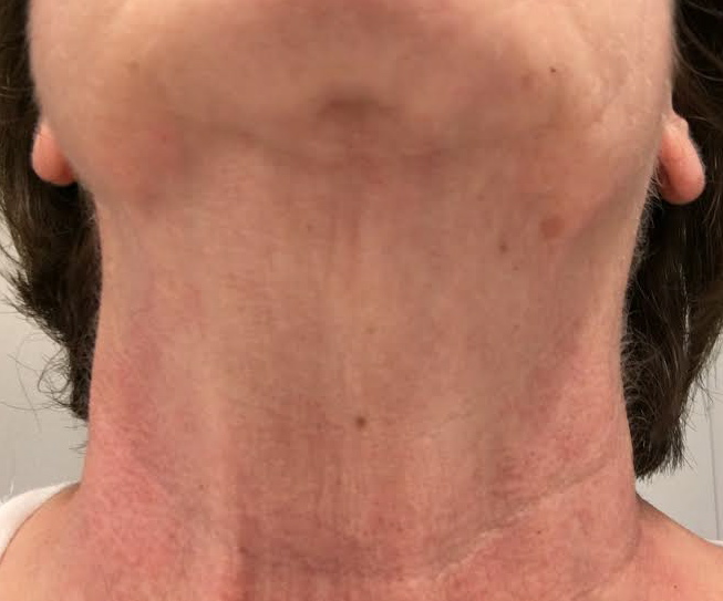Deborah L: Week 4 - As you can see, the difference is unreal. Not only did that first big line nearest my jaw go away, my neck became brighter. I really don't have to anything, just look at the pictures!!