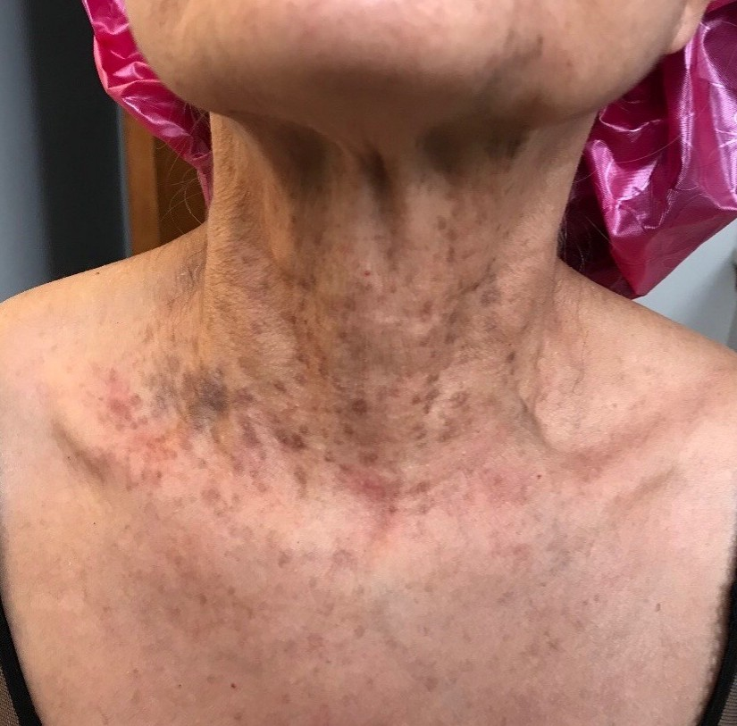 Jesse R. Week 1 - My first week I was embarrassed as I actually took a look at what my neck looked like! I realized I had deep in set lines and discoloration, on top of my wrinkles ( which I happen to love).