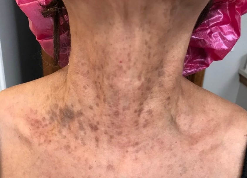 Jesse R. Week 6 - Okay, LOVE this product! I found myself excited to use, and saw so many amazing properties. The first is you can see my wrinkles greatly reduces, the skin tone improved dramatically and my neck looks and feels tighter. I am so happy I tried out this product!!