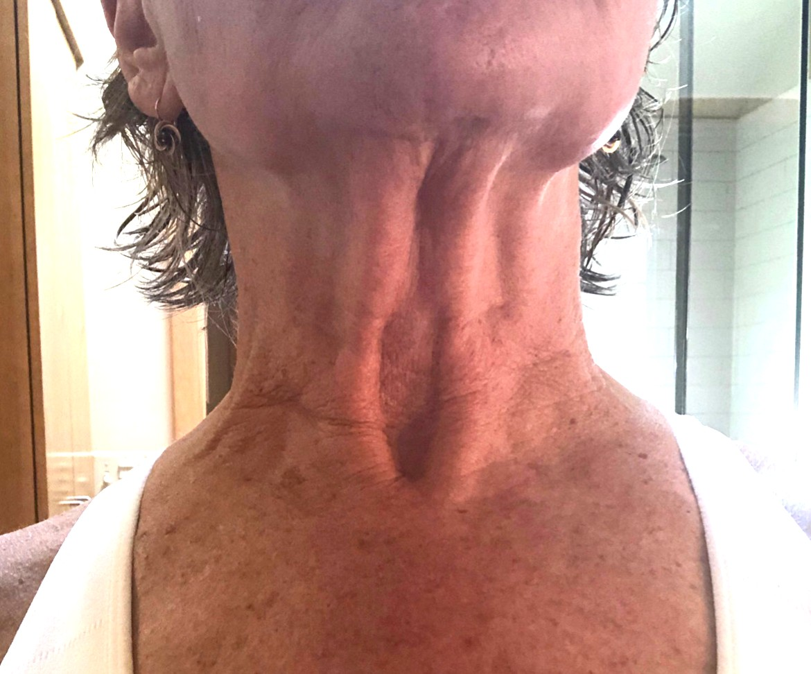 Karin A. Week 1 - My neck has always been very red, had a lot of big and little wrinkles that have gotten larger over time. I noticed the first time I used the product it was cool and smelled so good. It took about 30 minutes but came off in one nice peace, I look forward to using it!