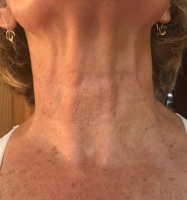 Karin A. Week 6 - What a difference! As you can see, I really saw a lightening and tightening of my neck. All of the little wrinkles were so reduced in appearance and the serum helped out every time after I used it. It like a silky lotion and I used it before I went out at night. I definitely recommend this product!