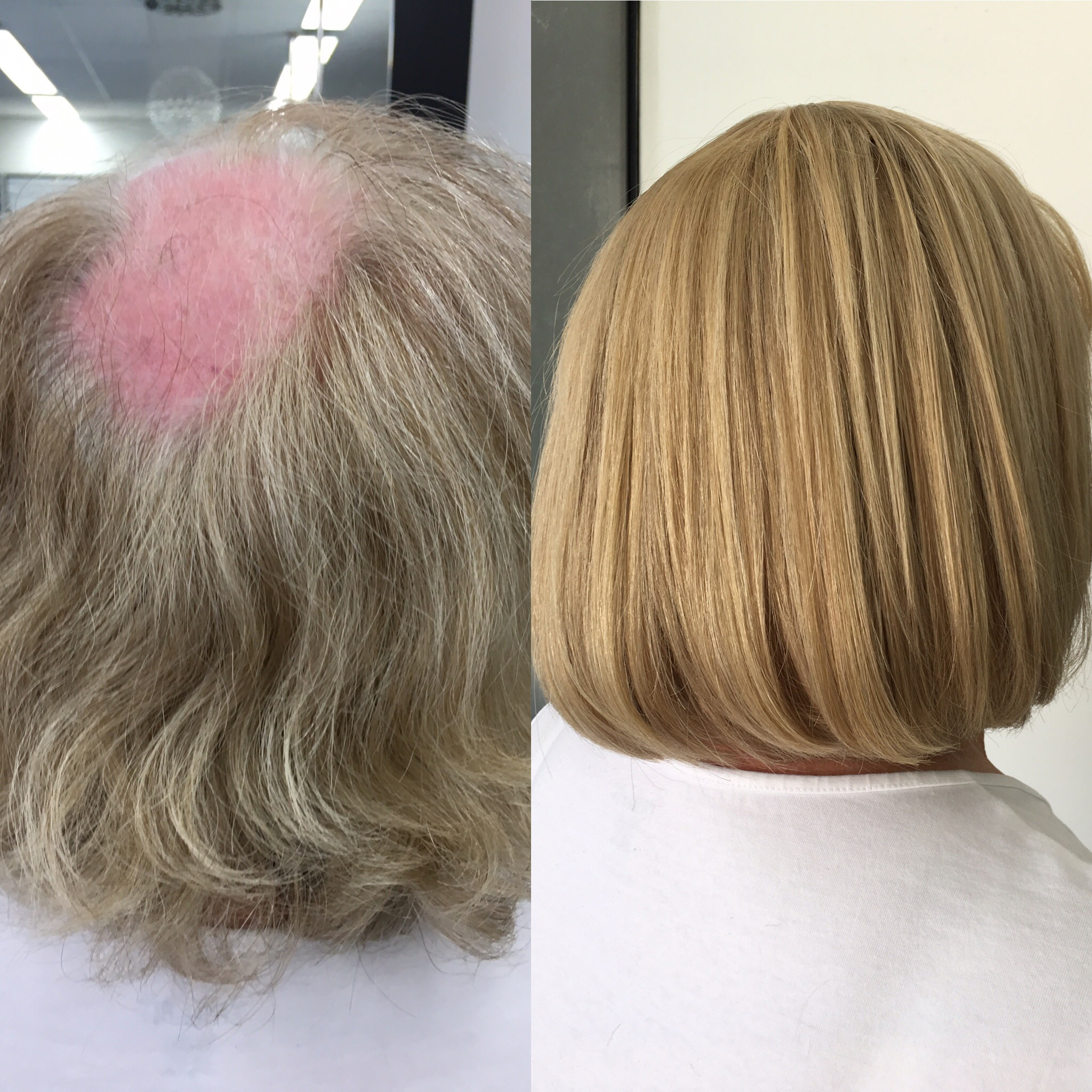 HAIR LOSS SOLUTION BEFORE AND AFTER. Custom piece installed made by us!
