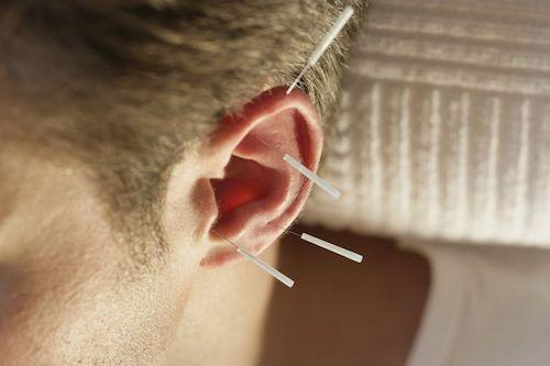 ear-acu-1-sm.jpeg