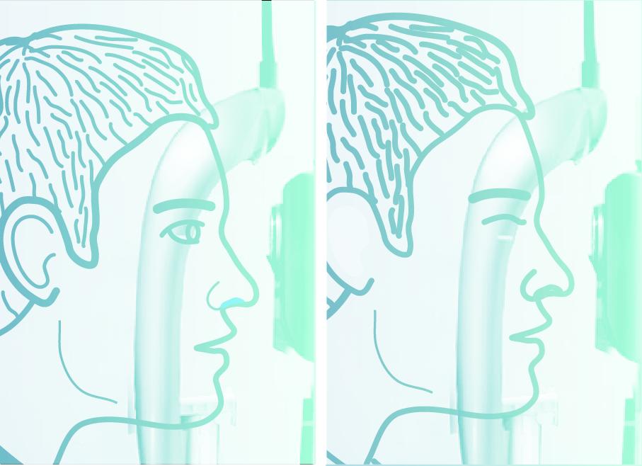 3. - Bolnik odpira in zapira oči, ko ga zato prosimo, širjenje zenic običajno ni potrebno.