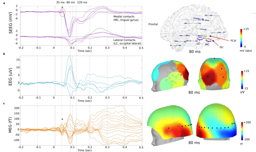 Activity evoked by visual stimulation (checkerboard) on MEG, EEG and intracerebral EEG (SEEG) recorded simultaneously (   Dubarry et al 2014   ).
