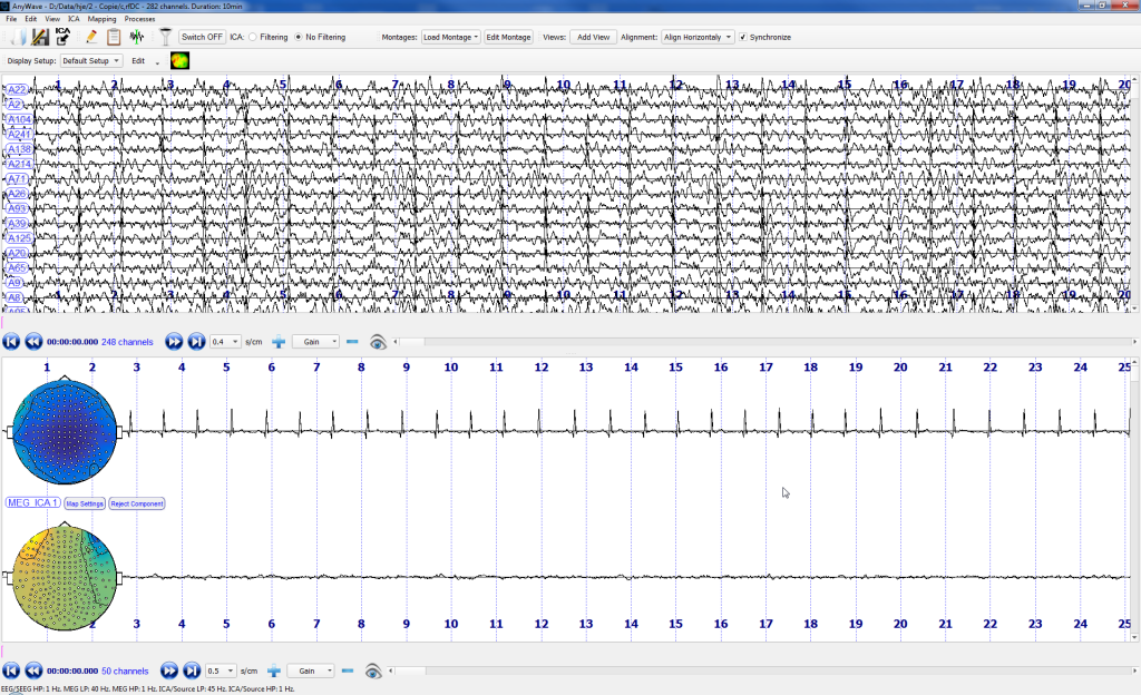 Example of ICA decomposition in Anywave (MEG traces).