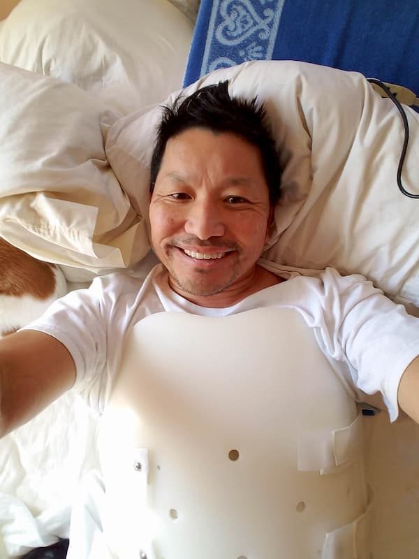 Our author, professor Kevin Tatsugawa, a few days after his bicycle accident.   Photo courtesy Kevin Tatsugawa.