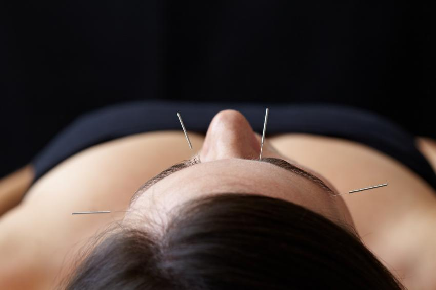 acupunctureb3010-2.jpg