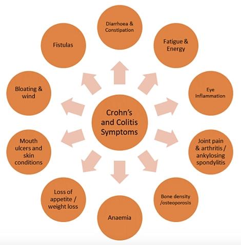 Crohn's-Disease.jpeg