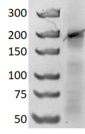Figure 7  6% native polyacrylamide gel run at 150V for 3 hours. DNA marker, GeneRuler Ultra Low Range DNA Ladder (left lane) and 2HO-RNA-2NN1 (right lane).