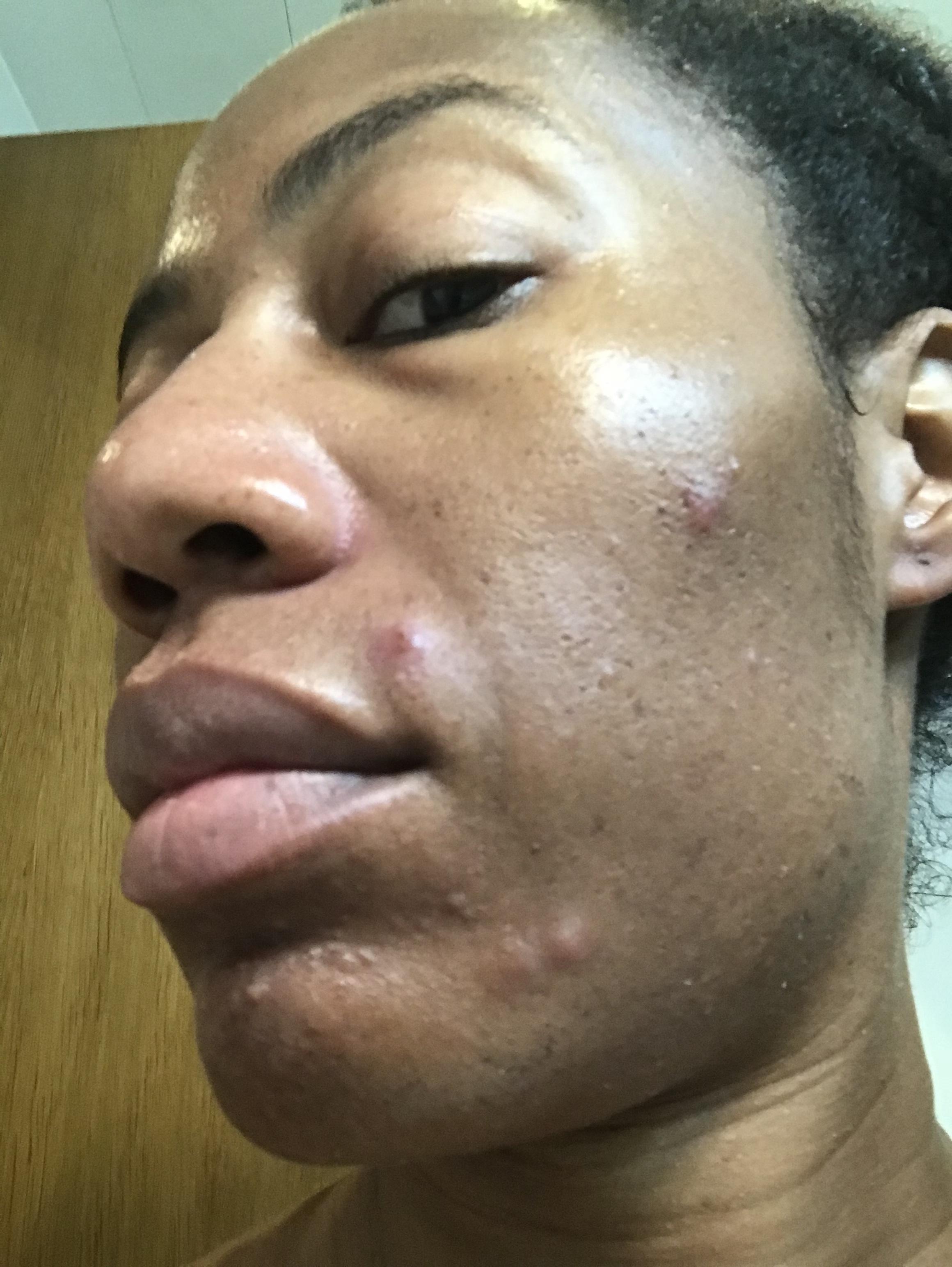 whole30 acne, whole30 cystic acne, whole 30 cystic acne