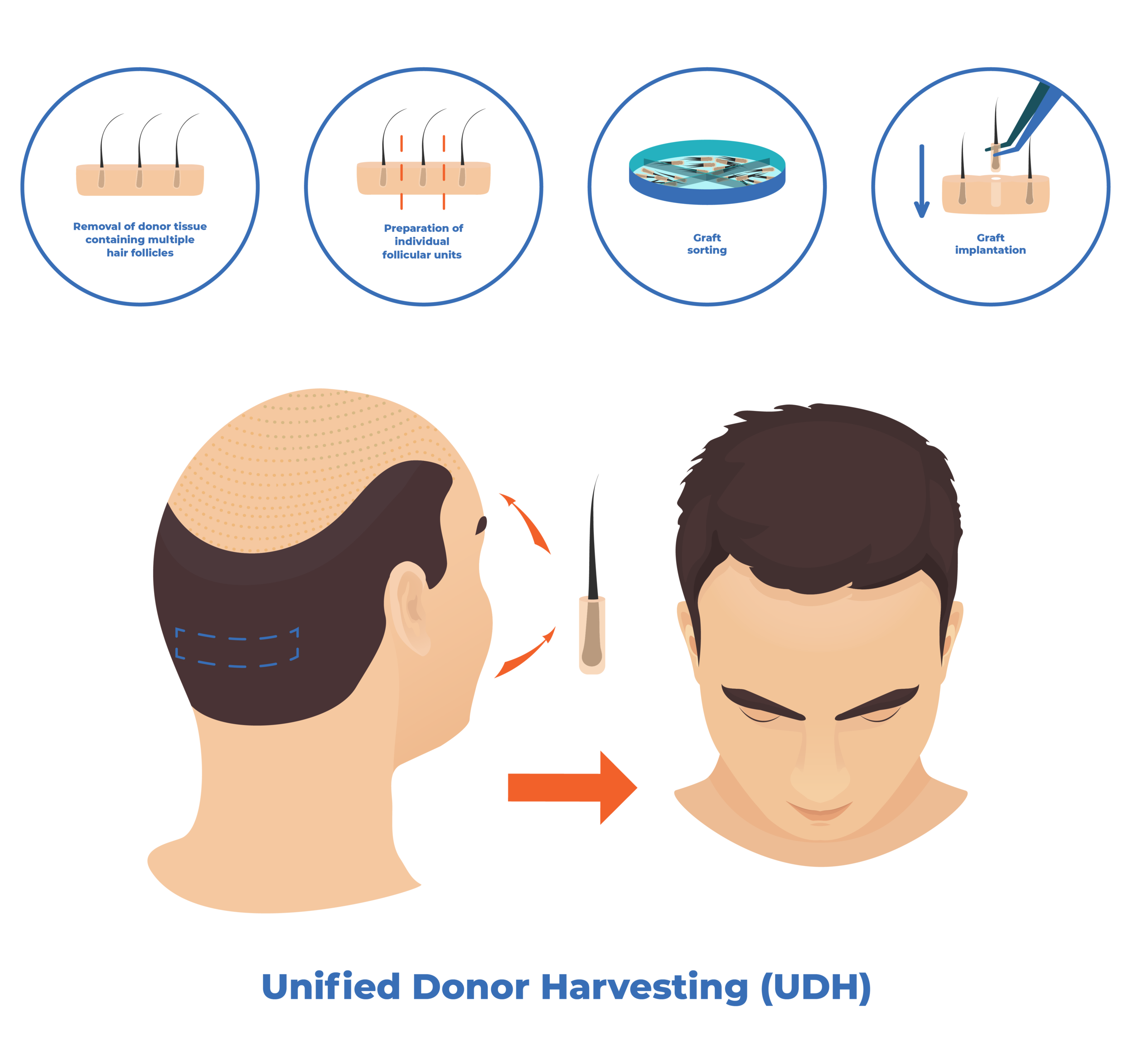 unified-donor-harvesting dr mark unger toronto hair transplantation