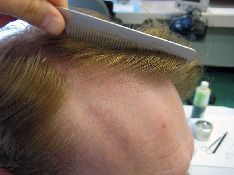 dr mark unger hairline example