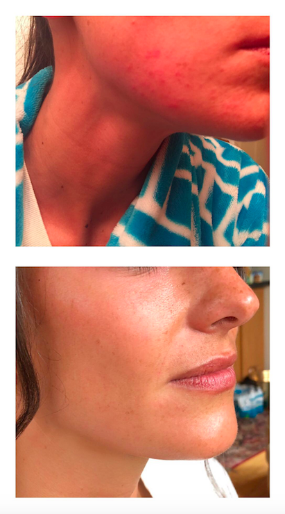 Thank you Alex so much, my skin is looking much better thanks to your recommendations! Not only did your advice help my skin before my wedding day but it's a skincare routine I'll use always! Even my dermatologist was impressed! -Alison