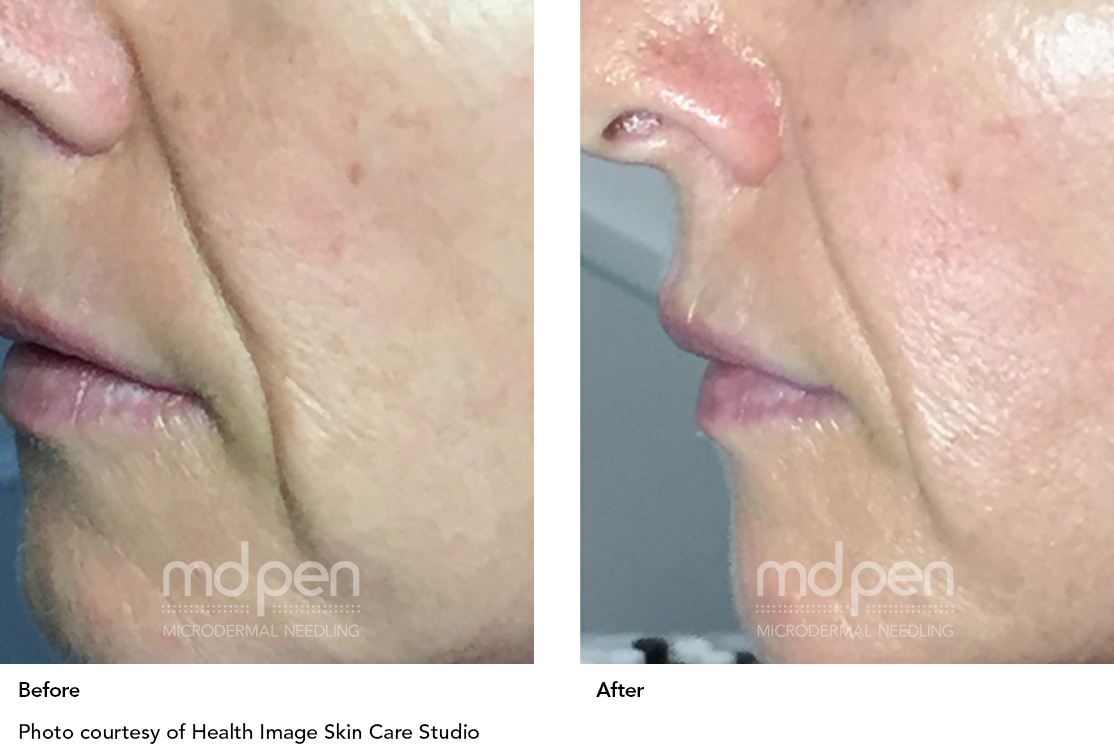 MDPen_BeforeAfter_011419_mouth_v_02.jpg